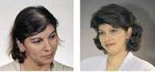 2wlosy-przed-po-leczeniu-ha