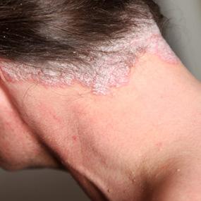 Zabieg na łuszczycę skóry głowy