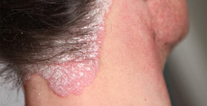 czy łuszczyca powoduje wypadanie włosów