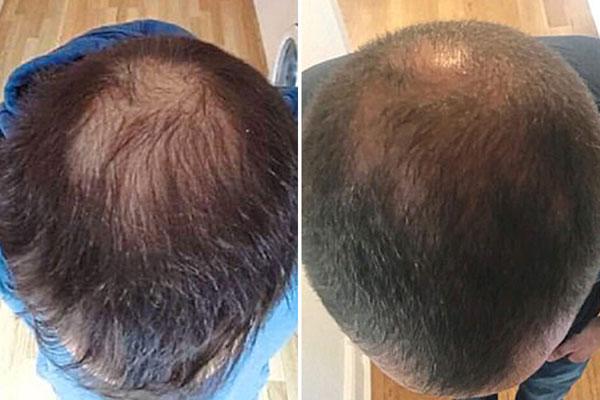 zabiegi na wypadanie włosów szczecin