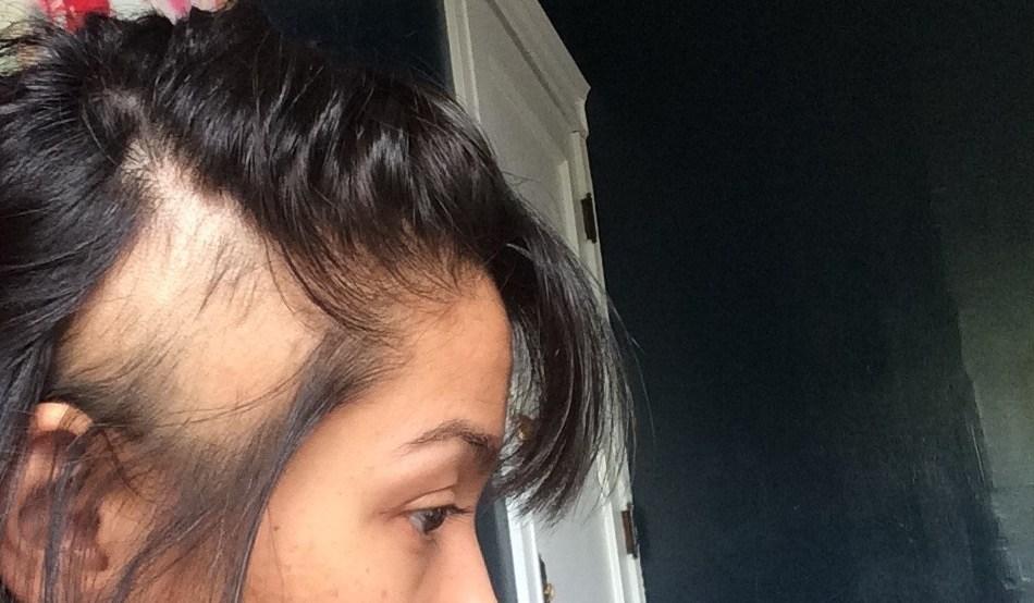 plackowate wypadanie włosów przyczyny