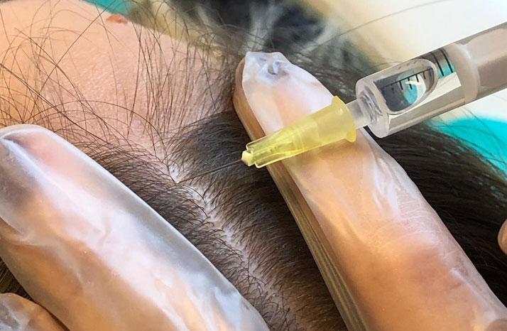 mezoterapia przeciw wypadaniu włosów